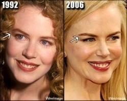 SuperCinema - Nicole Kidman e l'abisso del Botox - Newnotizie | Rinoplastica estetica | Scoop.it