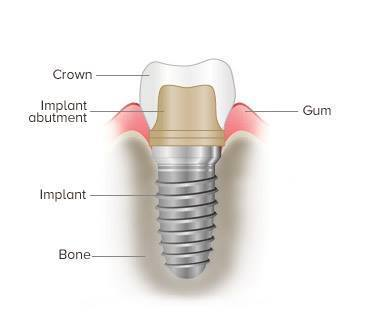 What is a dental implant? | Aesthetic Dental Arts PC | Dental | Scoop.it