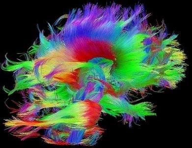 Scarlett Johansson, il cervello al 10% e Freud (che non capendo niente, aveva ... - Linkiesta.it | Mente e Cervello | Scoop.it