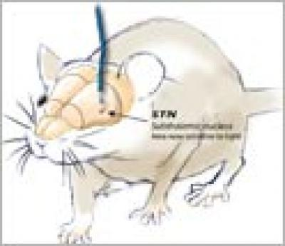 Parkinson's disease stopped in animal model | Psychology and Brain News | Scoop.it