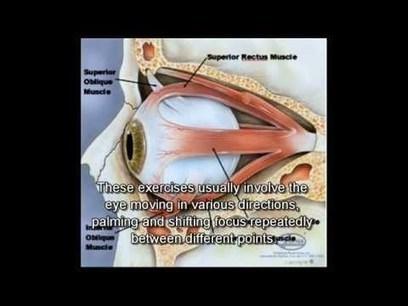 Restore your eyesight naturally YOURSELF - (Myopia) | Improve Eyesight Remedies | Scoop.it