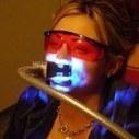 Smiletec360 Laser teeth whitening in Brighton | John Marc | Scoop.it