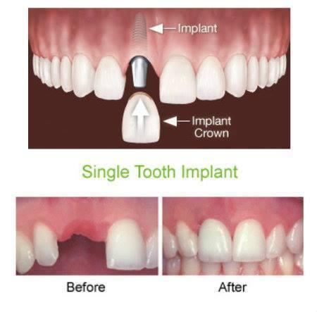 Bone grafts for dental implants | Dental implant treatment | Scoop.it