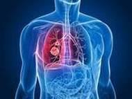 Tumore o cancro polmone   Giovani sul web   Scoop.it