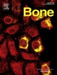 Effects of a Combination Therapy of Sclerostin Antibody III and Raloxifene on Bone Formation Markers in Ovariectomized Rats. - PubMed - NCBI | Osteoporosis New drugs Review | Scoop.it