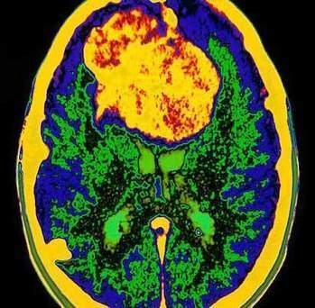 Attacking Brain Tumors in the OR and the Laboratory - Innovate Physician Winter 2012 - Newsroom - Barnes-Jewish Hospital | Medical Device Risk Management | Scoop.it