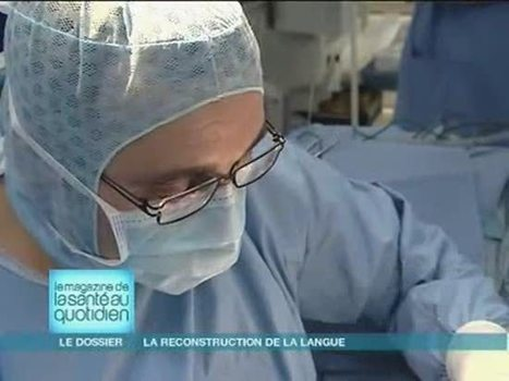La langue et ses pathologies - allodocteurs | Orthophonie | Scoop.it