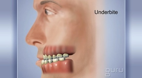TMD/TMJ | Pediatric Dentist | Scoop.it