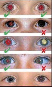 El cáncer de ojos se puede detectar con una fotografía | SALUD OCULAR: GAFA TÉCNICA, OJO SECO Y DEPORTE GRADUADA | Scoop.it