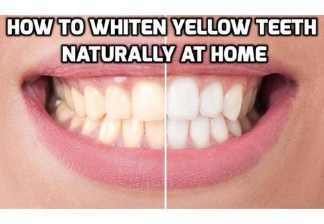 3 Teeth Whitening Tips to Whiten Yellow Teeth Naturally | How To Have A Better Sex Life | Scoop.it