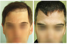 Hair Loss Concealers - Hair Surgery | Hair Loss, Baldness and Hair Transplants | Scoop.it