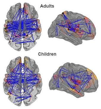 'Rich club' brain network grows richer with age - SFARI News (blog) | Social Neuroscience Advances | Scoop.it