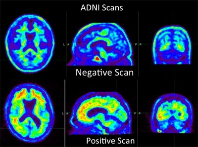 Alzheimer's Disease Neuroimaging Initiative: Using Amyloid Imaging as a ... - UCSF Department of Radiology & Biomedical Imaging (blog) | Social Neuroscience Advances | Scoop.it