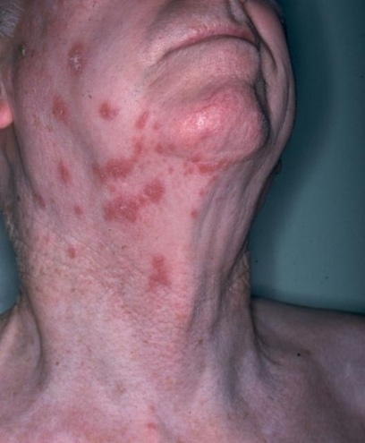 Herpes Virus was Passed On to Humans 1.6 Million Years Ago   Amazing Science   Scoop.it