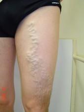 varicose veins treatment | Business | Scoop.it