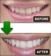 Teeth Whitening Gel - For Having the Brightest and Whitest Teeth | health | Scoop.it