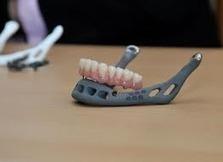 Une mâchoire créée par une imprimante 3D est greffée sur une patiente ! | REPRAP | Scoop.it