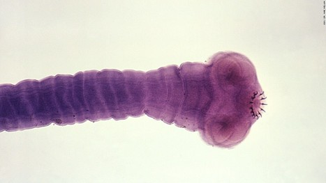 The worms that invade your brain - CNN.com | 21st Century Medical English Teaching and Technology Resources | Scoop.it