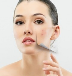 Why Buy ClearPores Acne Treatment | Best Natural Health Products | Scoop.it