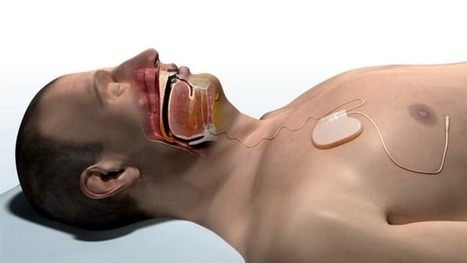 Pacemaker for the tongue helps apnea patients breathe normally | The future of medicine and health | Scoop.it