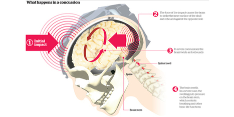 The Knock-on Effect: Spectre of brain injury haunts contact sport - Sport - NZ Herald News | Violence in Sport | Scoop.it