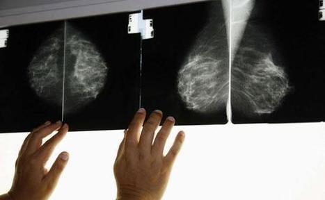 Les Belges les plus touchées au monde par le cancer du sein | Toxique, soyons vigilant ! | Scoop.it