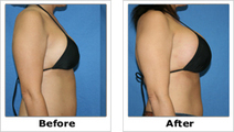 Breast Lift before after | Cosmetic Surgery | Scoop.it