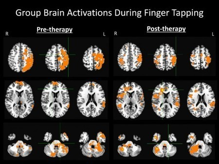 Rehabilitative device bridges the gap between stroke victims' brains and hands | Longevity science | Scoop.it