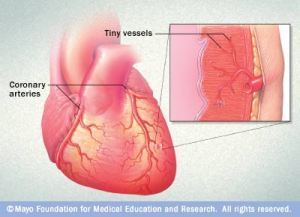 His and hers heartattacks   Heart diseases and Heart Conditions   Scoop.it