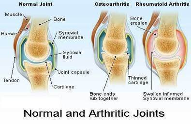 Arthritis Cure in Bangalore | Joint Inflammation Treatment in Hosur | Orthopedic oncology Surgery in bangalore | Scoop.it