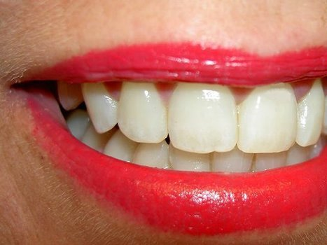 Knowing The Essentials of Composite Dental Veneers | Pro Smiles | Scoop.it
