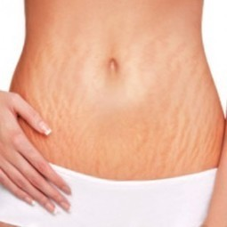 Best Stretch Mark Cream | Herbal Products | Scoop.it