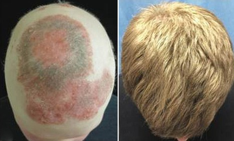 Scientists successfully use arthritis drug to regrow completely bald man's hair - Daily Mail   Research Capacity-Building in Africa   Scoop.it