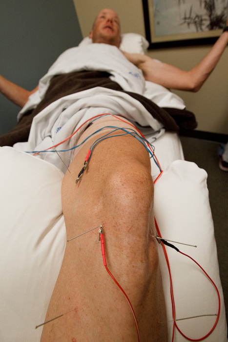 Inside Chris Horner's acupuncture session - VeloNews.com | Acupuncture and sports | Scoop.it