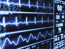 EKG Echocardiogram in Houston   Cardiac Catheterization and Stenting in Houston   Scoop.it