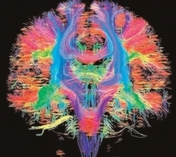 The Brain in Technicolour | Prionomy | Scoop.it