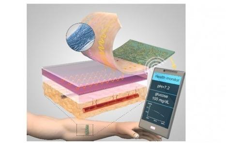 Le fil chirurgical intelligent assure le suivi des sutures | L'Atelier : Accelerating Innovation | Santé Industrie Pharmaceutique | Scoop.it