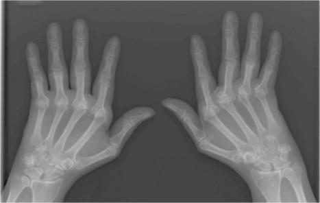 eHealth: aplicación MyRA facilitará el diagnóstico de enfermedades | Las TIC en Ciencias de la Salud | Scoop.it