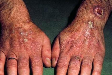 Les pathologies dermatologiques : CANCERS DE LA PEAU - Syndicat des dermatologues -vénéréologues : dermatologues, acné, cancer de peau | svt cancer soleil mars 2013 | Scoop.it