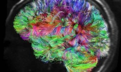 Human behaviour: is it all in the brain – or the mind? | Brainy | Scoop.it