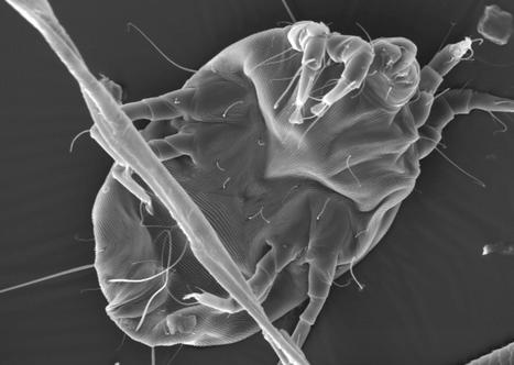 Dust mite allergens share rare combination of qualities | Amazing Science | Scoop.it