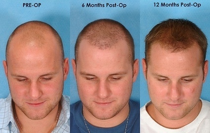 All You Want To Know About Hair That Grows After Hair Transplant   Hair and Skin   Scoop.it