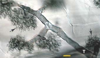 Mycorrhiza:A history of research on arbuscular mycorrhiza (2004) | Emerging Research in Plant Cell Biology | Scoop.it