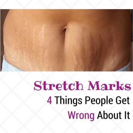 Stretch Marks: 4 Things People Get Wrong About It | Spamedica | Plastic Surgery | Scoop.it