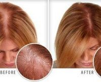 Effective Ayurvedic Tips for Hair Growth - Find Health Tips | wellness | Scoop.it