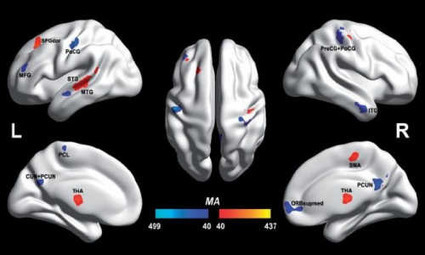 Autistic and non-autistic brain differences isolated for first time | Usal - MediNews | Scoop.it