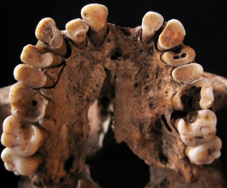 Paleo Dieters Beware — Cavemen Had Cavities Too - Discover Magazine (blog) | Insect protein is future food source for Animal and Human beings?! | Scoop.it