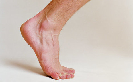 Ask Well: Healing Plantar Fasciitis   Physical and Mental Health - Exercise, Fitness and Activity   Scoop.it