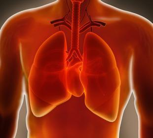 Idiopathic pulmonary fibrosis linked to heart attacks | IPF | Scoop.it