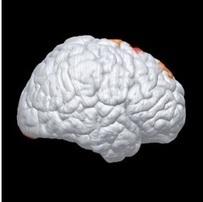 ALZHEIMER: Le risque génétique détectable chez le nourrisson? - JAMA Neurology | Orthophonie | Scoop.it